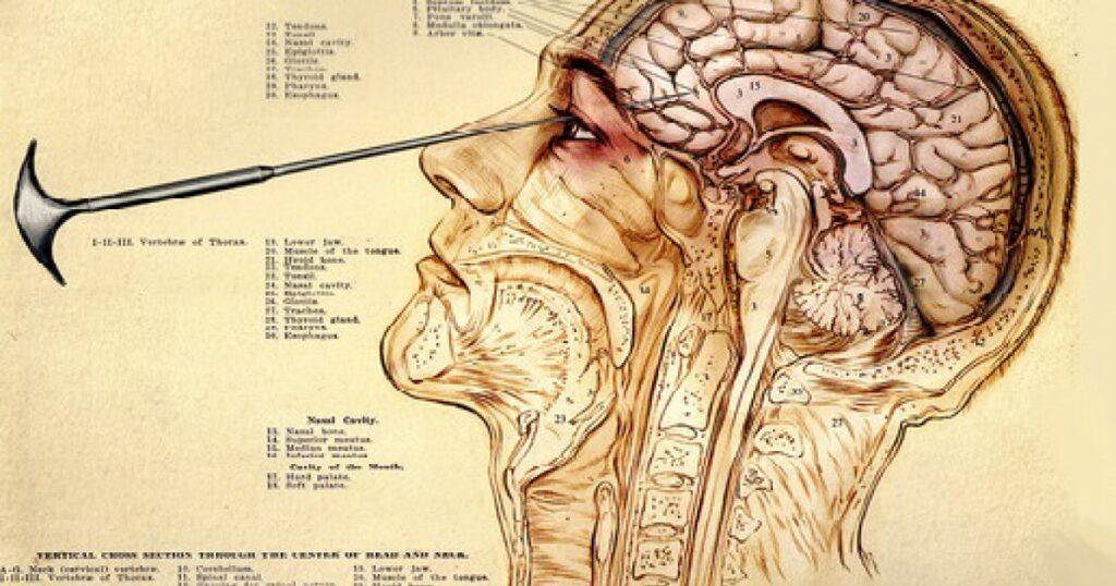Los pacientes del doctor Thompson, la crueldad de la lobotomía.